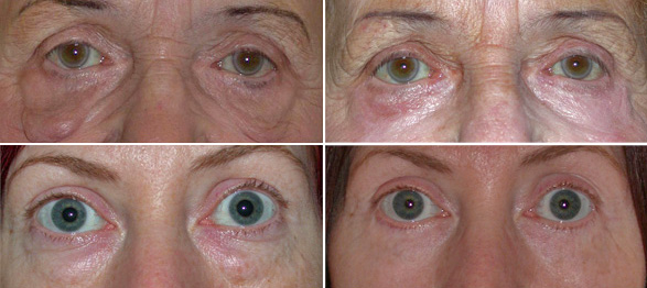 jonathan-britto-lower-blepharoplasty